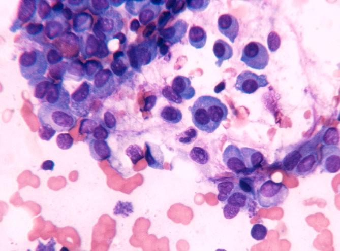 myeloma 1