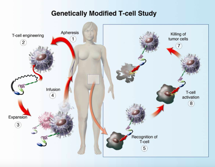 CAR-T Cell Therapy for Cancer Treatment – An Insight into Side Effects